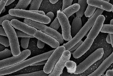Superbug NDM1 Lancastria
